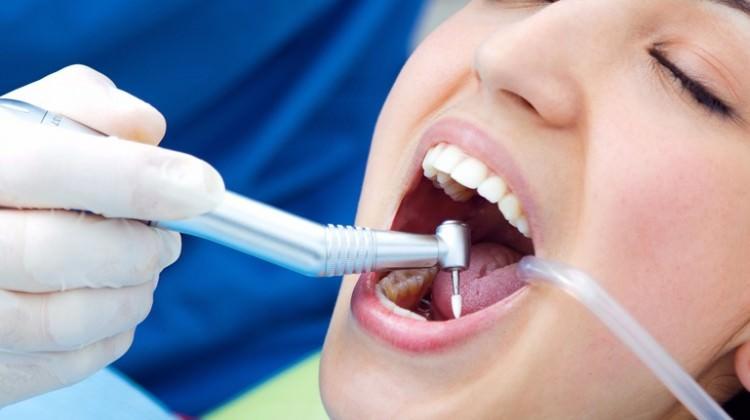 Diş dolgusu tarih oluyor!
