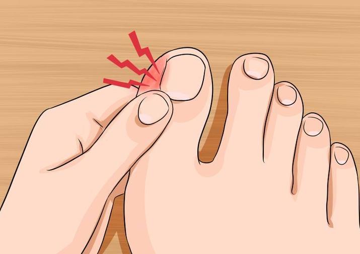 Вросший ноготь на большом пальце нарывает